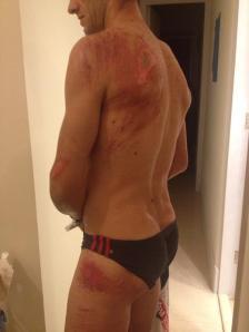 Bike crash broken collarbone and road rash