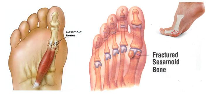 sesamoid-bone-fracture-1